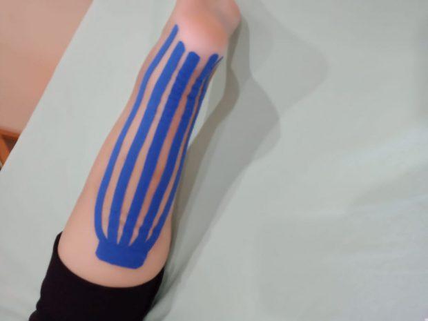 klinik lineation fisioterapi bandung